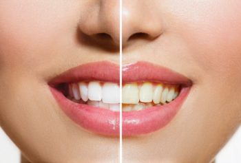 Should You Whiten Teeth At Home or In the Dentist's Office?