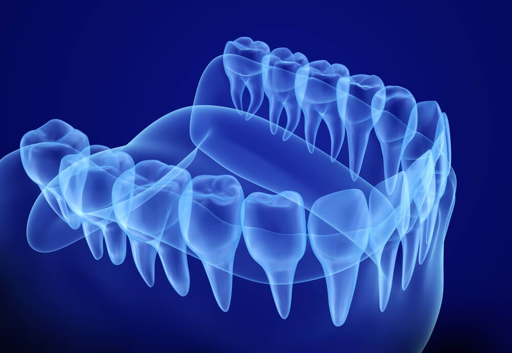 What is a 3D Dental Scan?
