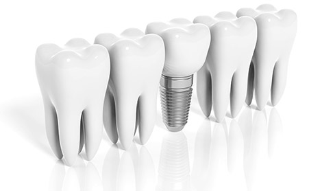 dental implants glen mills