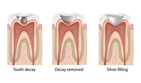 The three stages of a dental bonding procedure