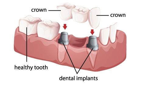 Graphic of a dental crown and bridges
