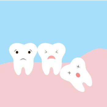 Wisdom Teeth and Your Dental Health