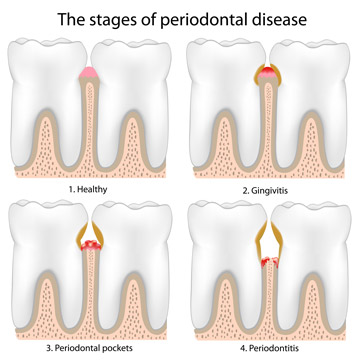 Graph of the four stages of periodontal disease